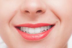 笑う女性の口元の画像